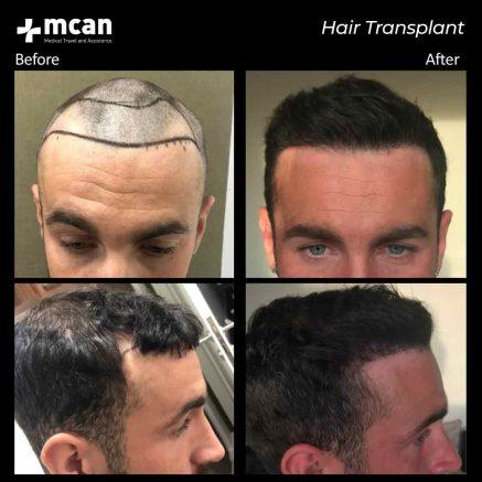 hair-transplantation-101