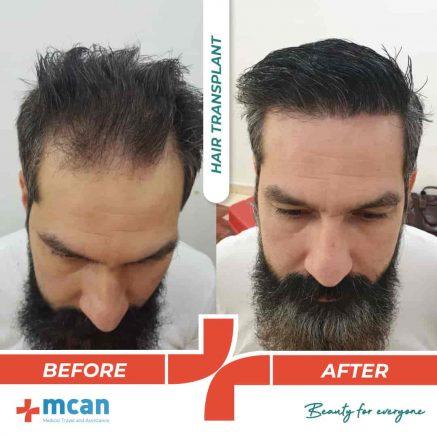 hair-transplantation-12.05-1