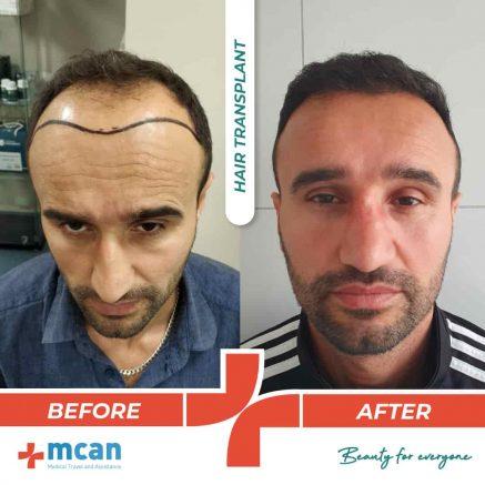 hair-transplantation-12.05-4