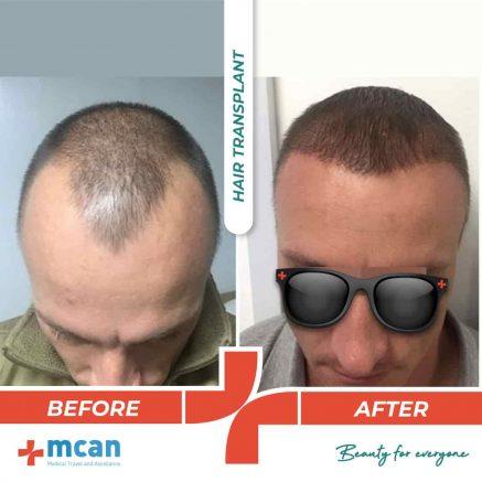 hair-transplantation-12.05-6