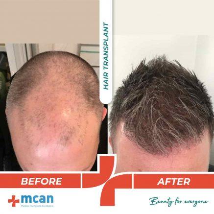 hair-transplantation-12.05-7