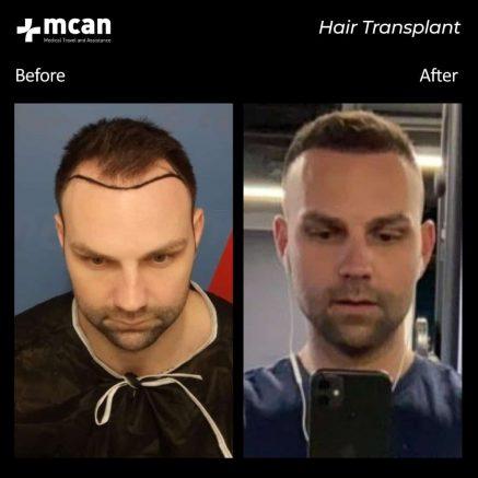 hair-transplantation-58