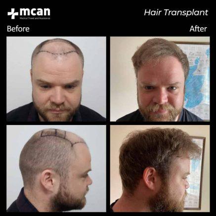 hair-transplantation-59