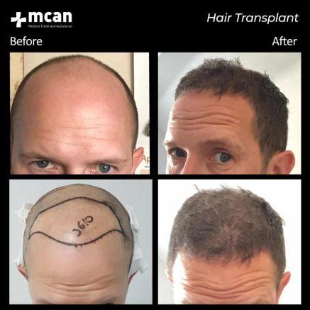 hair-transplantation-60