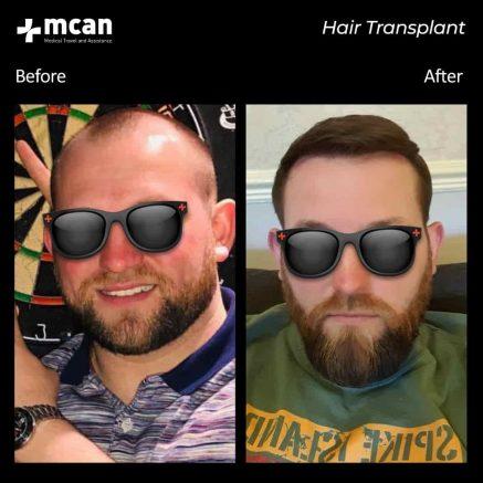 hair-transplantation-61