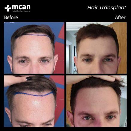 hair-transplantation-62