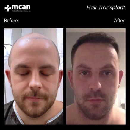 hair-transplantation-63