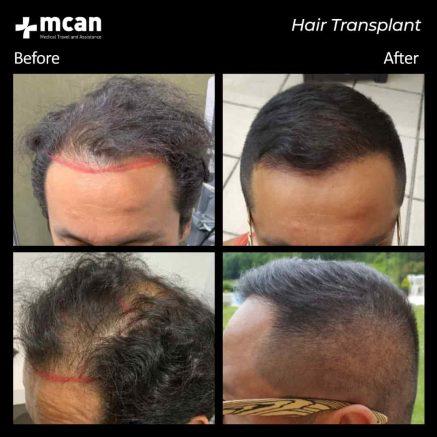 hair-transplantation-64