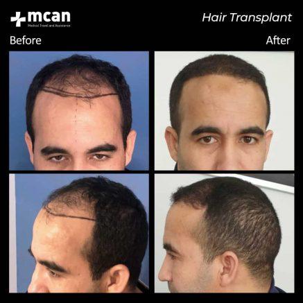 hair-transplantation-66