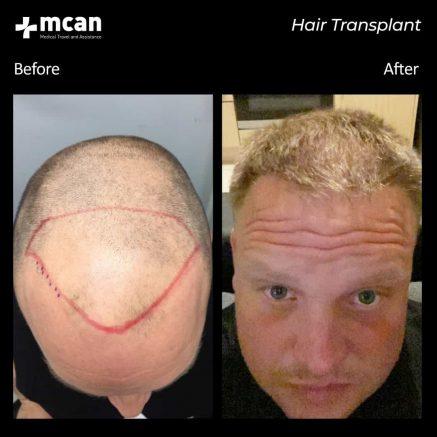 hair-transplantation-67