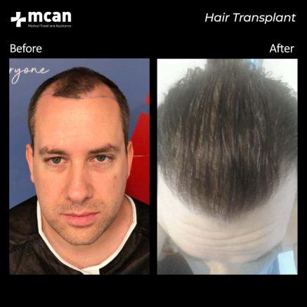 hair-transplantation-68
