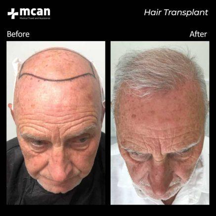hair-transplantation-69