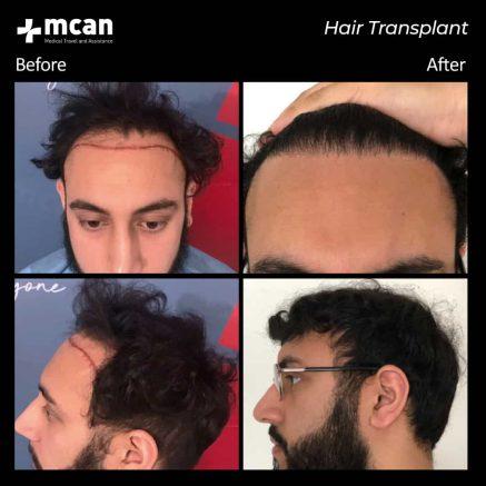 hair-transplantation-70