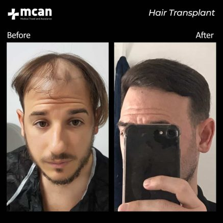 hair-transplantation-71