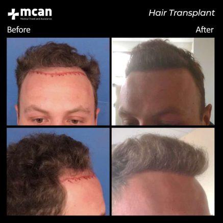 hair-transplantation-72
