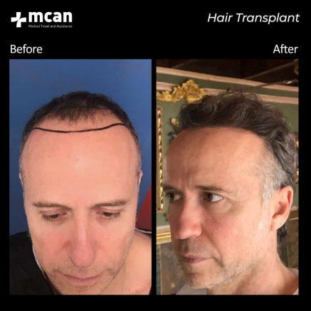 hair-transplantation-73