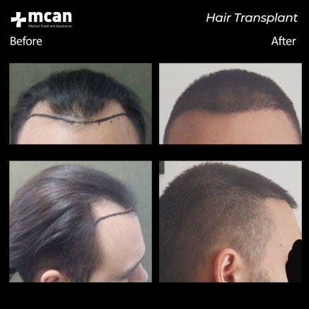 hair-transplantation-74