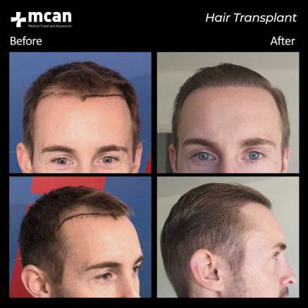 hair-transplantation-75