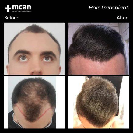 hair-transplantation-76