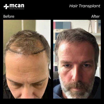 hair-transplantation-77
