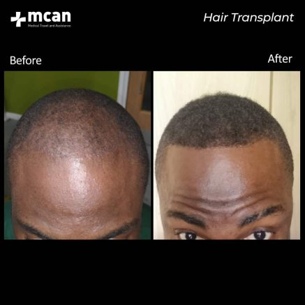 hair-transplantation-78