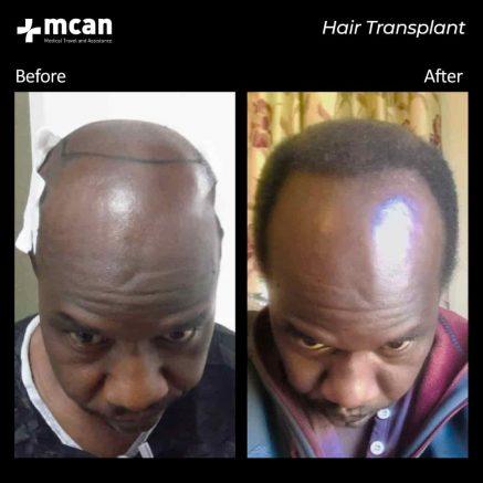 hair-transplantation-79