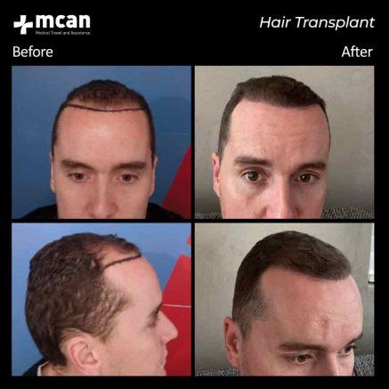 hair-transplantation-80