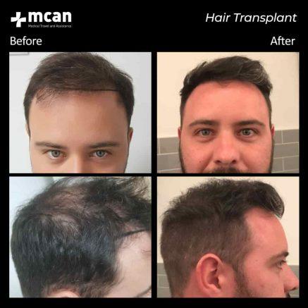 hair-transplantation-81