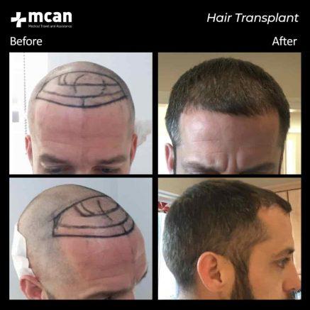hair-transplantation-82