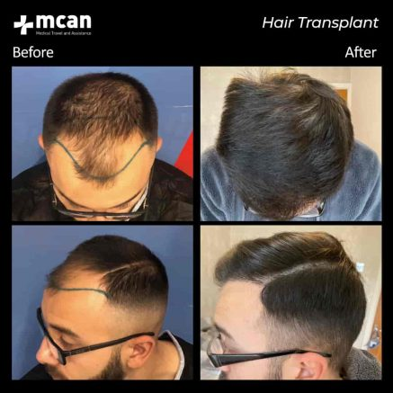 hair-transplantation-83