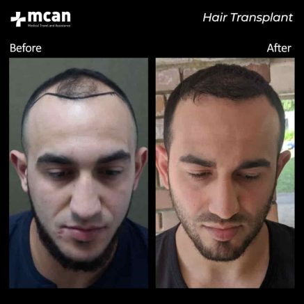 hair-transplantation-84