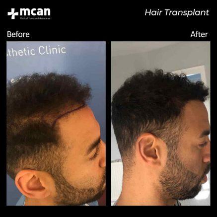 hair-transplantation-85