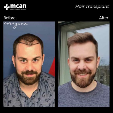hair-transplantation-86