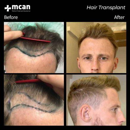 hair-transplantation-87