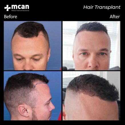 hair-transplantation-88