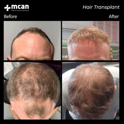 hair-transplantation-89