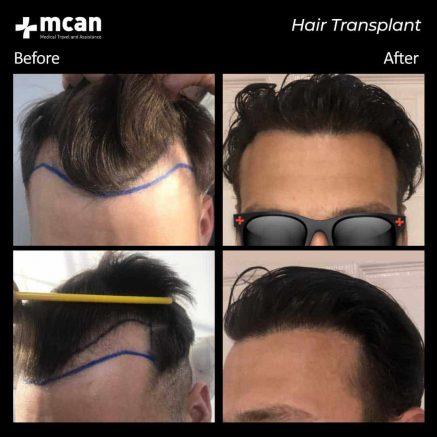hair-transplantation-90