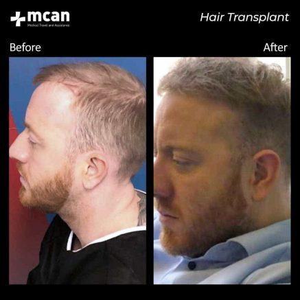 hair-transplantation-91