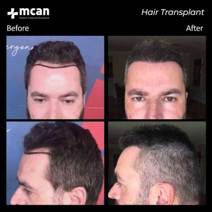 hair-transplantation-92