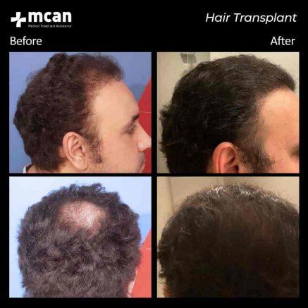 hair-transplantation-93