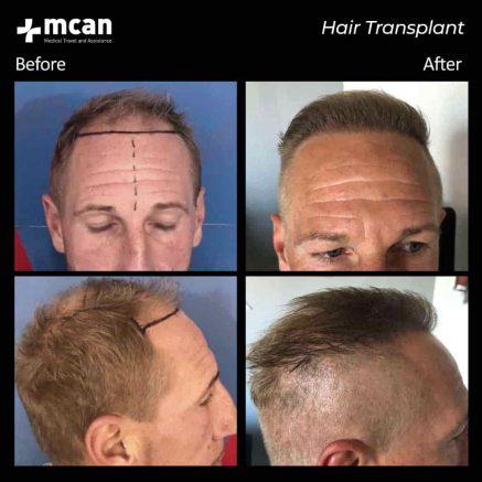 hair-transplantation-94