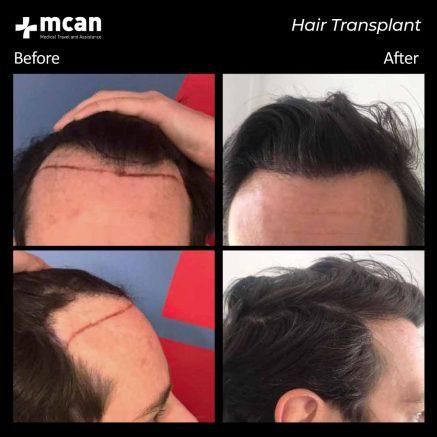 hair-transplantation-95