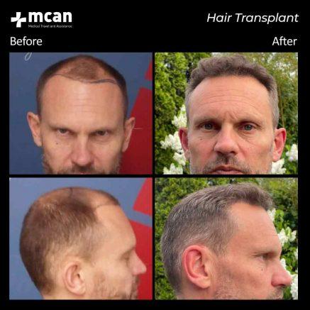 hair-transplantation-96