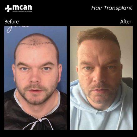 hair-transplantation-97
