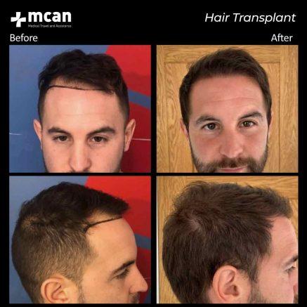 hair-transplantation-99
