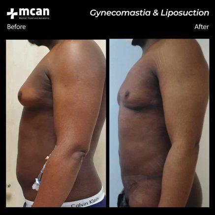 26.06.20-gynecomastia-liposuction