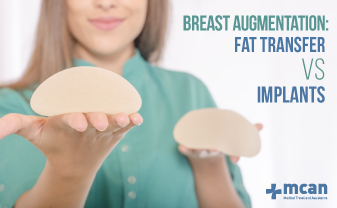 Breast Augmentation Fat Transfer Vs Implants Mcan Health