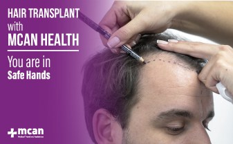 hair transplant safe hands