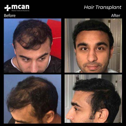 hair-transplantation-103