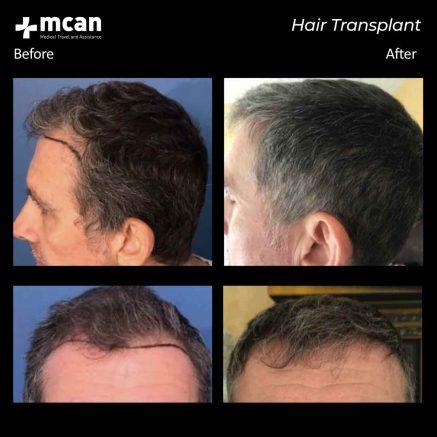 hair-transplantation-104